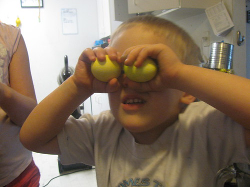 Boy is egg-eyed