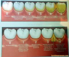 Teeth Condition Chart