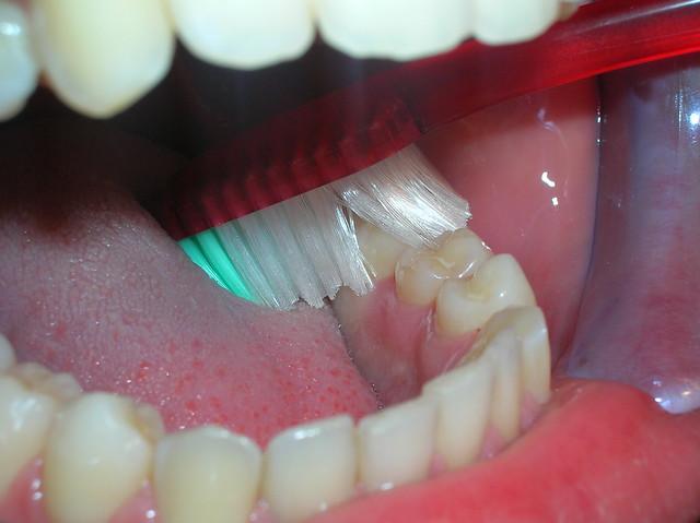 Zona molares por lingual