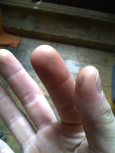More blisters