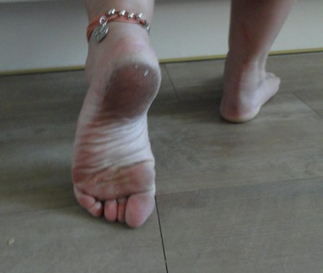 Dirty Feet And Soles
