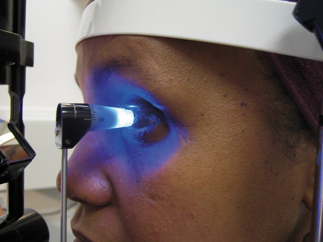 Applanation tonometry: measuring intraocular pressure (IOP). UK.