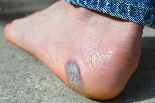 Marathon practice blister