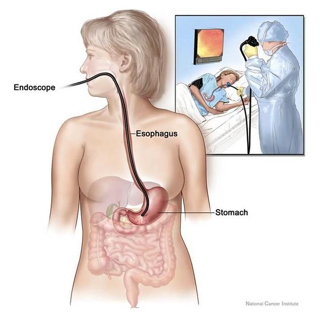 Gastroscopy1
