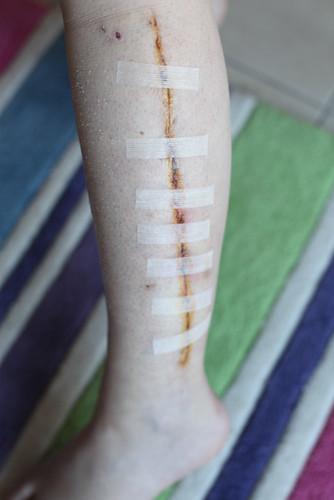 Wounds Aug 22-2