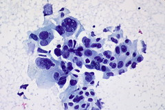 Non-small cell carcinoma - FNA
