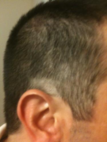 shaved bald spot