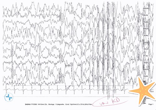 2008-07_EEG vor ketogener Diät