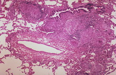 Sarcoidosis - Lymphatic localization of granulomas