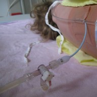 Nephrostomy tube in...