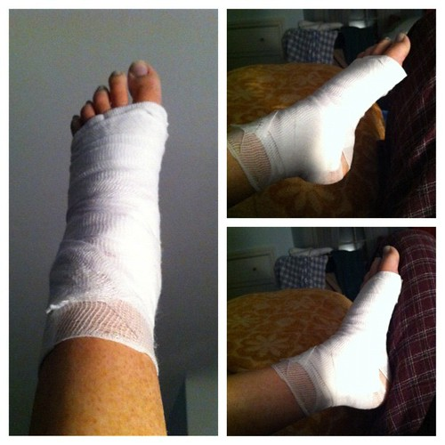 Top right: ankle at rest. Bottom right: ankle as far as I can get it. Progress is goooood!