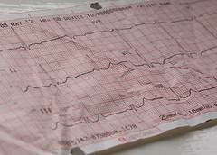 Heart Rate Printout