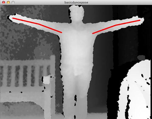 skeletal tracking