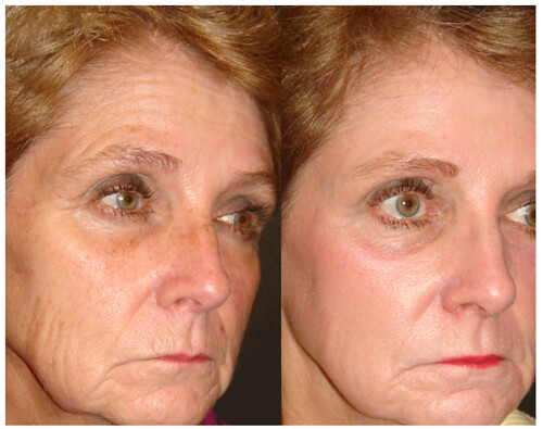 Fraxel Treatment - Before and After