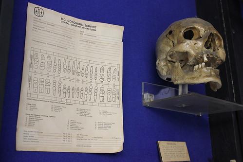 Dental Identification and skull