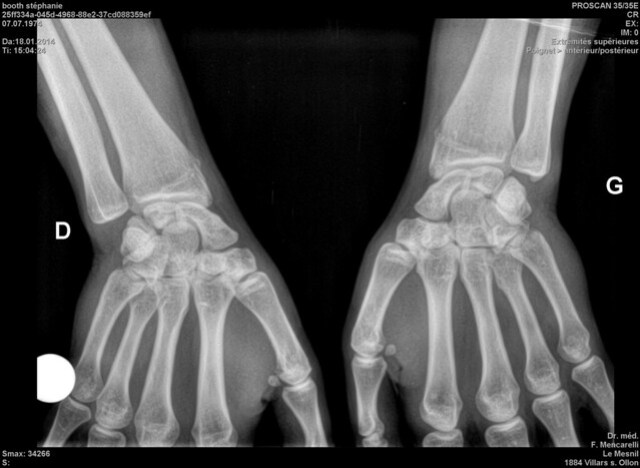 xray steph hands