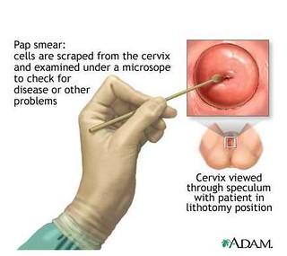 cervical-cancer-pap-test-752185