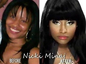 Nicki Minaj Nose Surgery Before and After Photo