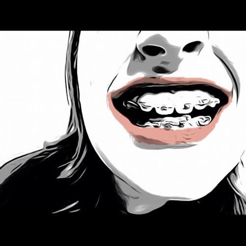 Braces #instadaily #all_shots #toonpaint #teeth