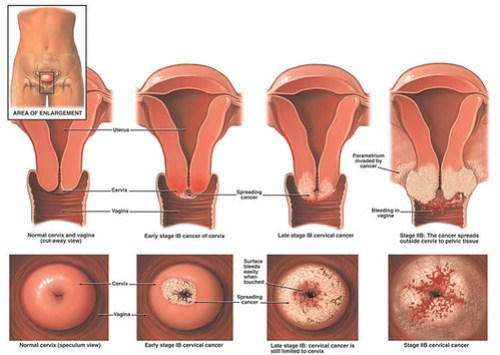 cervical_cancer