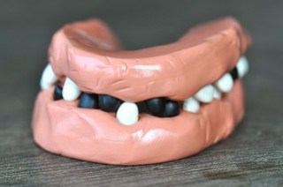 Theraputty Exercise Dental Teeth