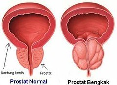 Pengobatan Pembengkakan Prostat Tanpa Operasi
