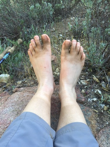 Feet and legs after 18 miles of hiking