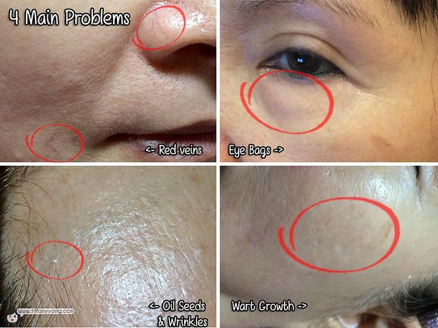 Annabelle Skin Problems