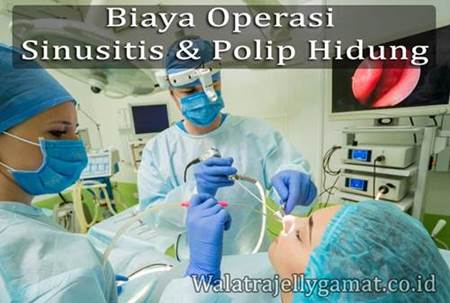 Biaya Operasi Sinusitis Dan Polip Hidung