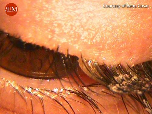 817 - Superglued eye