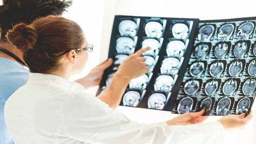 Gejala dan Faktor Penyebab Penyakit Kanker Otak
