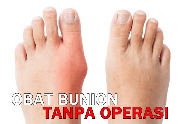 Obat Bunion