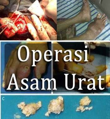 operasi asam urat
