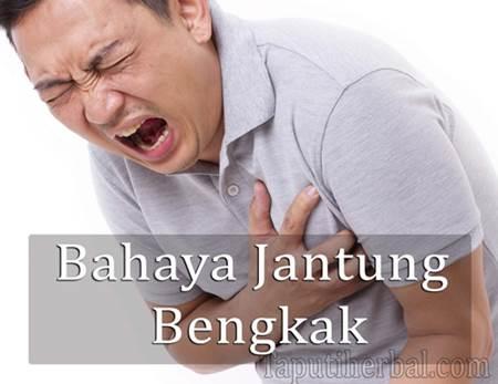 Bahaya Jantung Bengkak Dan Cara Mengobatinya