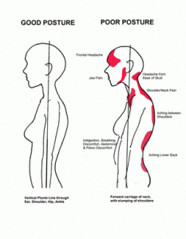 Poor posture affecting women