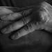 Reumatoid artrit
