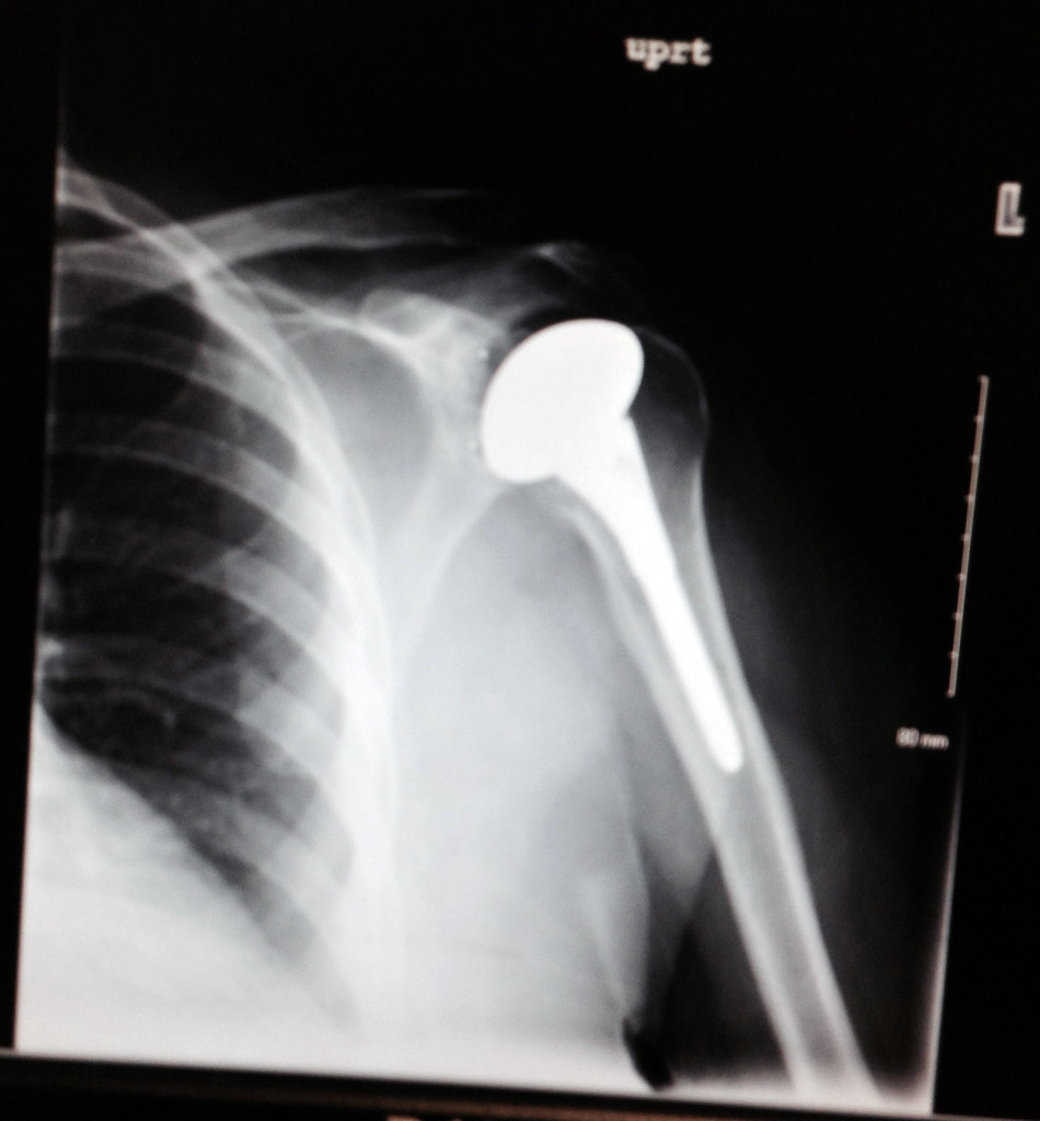 Shoulder Replacement X Ray