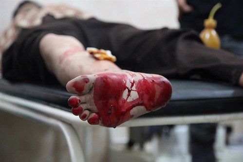 A man bleeds in a northern Syria hospital after a ricochet bullet went through his foot. In a sense, he was lucky that the bullet did not stay in his body, which would have required surgery to remove. The hospital staff told us that until very recently th