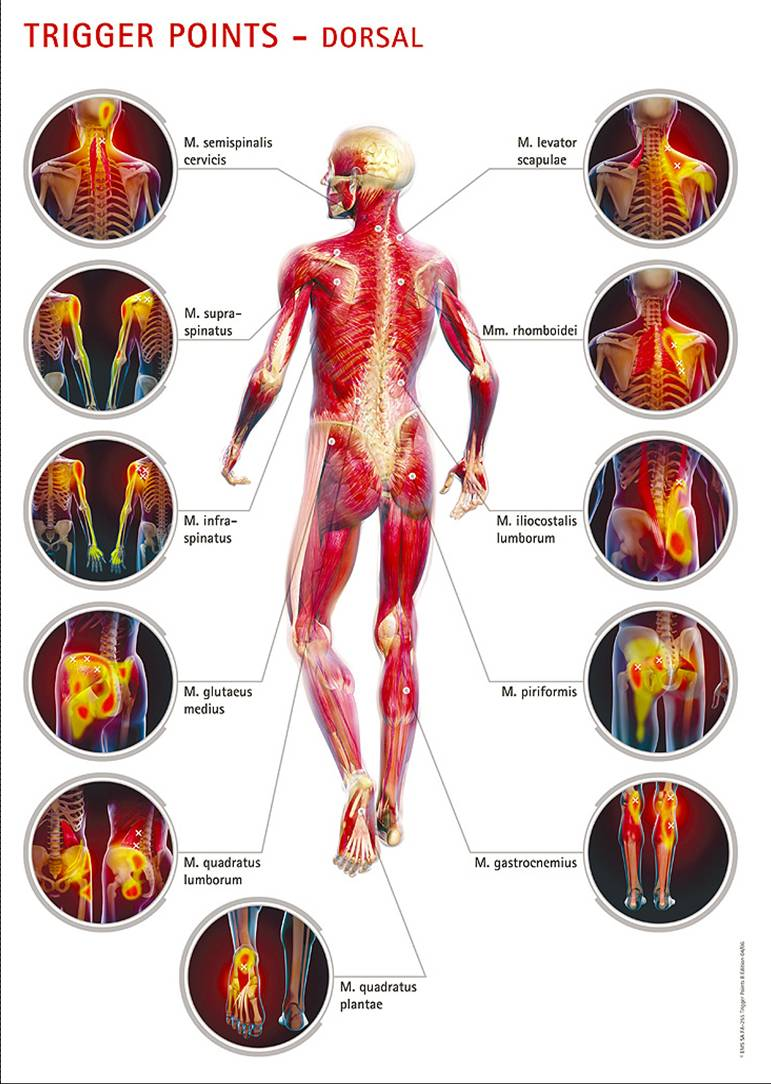 graphic_trigger_points_rear