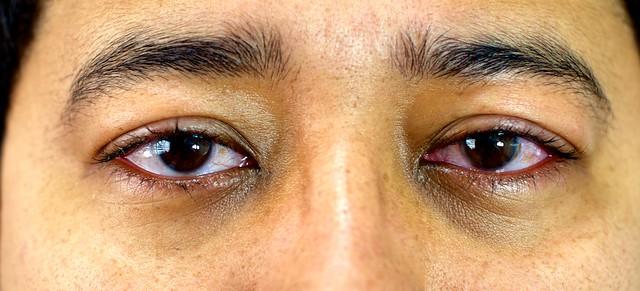 Olhos Dia 4 após cirurgia laser PRK de correção de miopia