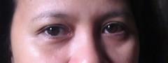 My sister Before using Mary Kay TineWise Plus Correcting EyeCream