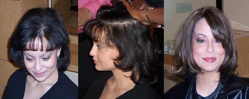 nutririon_hair_loss_thinning_balding