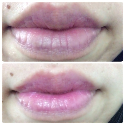 Difference after lip tattoo Shizens