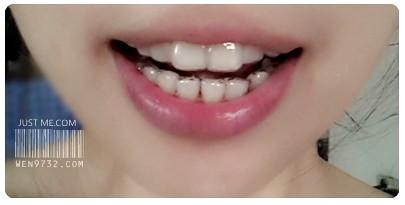 ║牙套日記║☞隱適美Invisalign@透明隱形牙套.走在牙齒矯正之路Star☜ @ Just 米..就 是 Me :: 痞客邦
