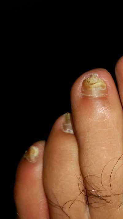 Hongos en las uñas de los pies
