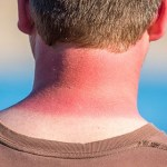 ¿Qué hago si me he quemado con el Sol? | Consejos