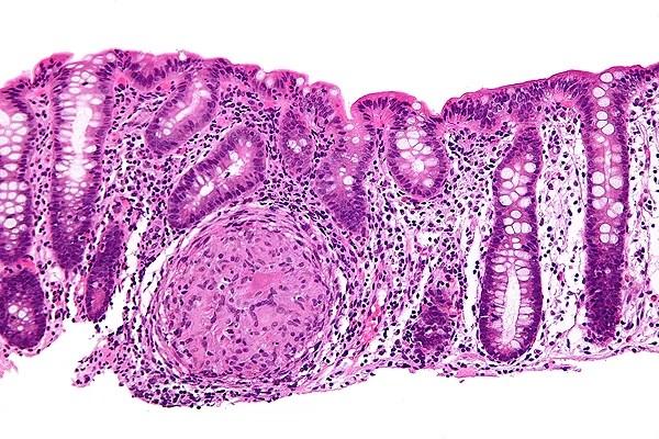 Biopsia donde se puede apreciar inflamación granulomatosa del colon en un caso de enfermedad de Crohn (tinción H-E) Autor/a de la imagen: Fuente: Nephron Fuente: Viquipèdia / Wikipedia
