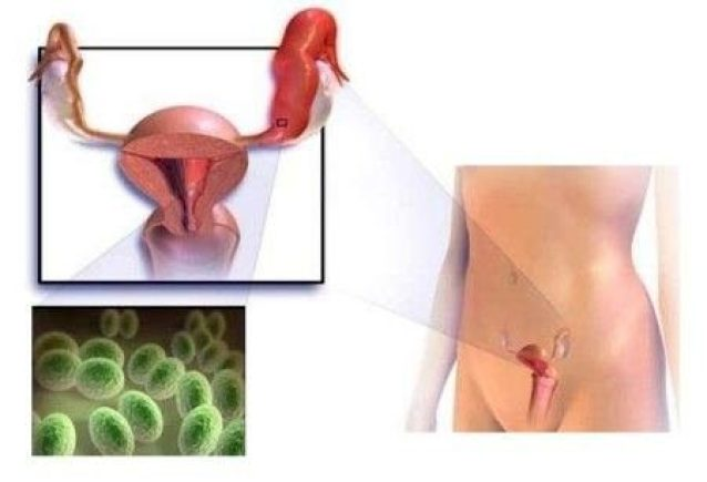 mikoplazmoz-prichiny-simptomy-i-lechenie-1