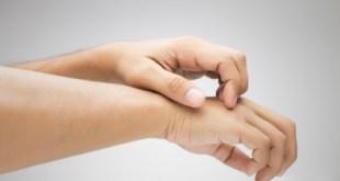 Novartis Kembangkan Obat Potensial Baru, Terapi Lini Pertama Untuk Eksim
