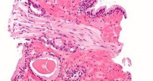 Teknik Terapi Baru dengan Bakteri Laut Mampu Membunuh Sel Kanker Prostat